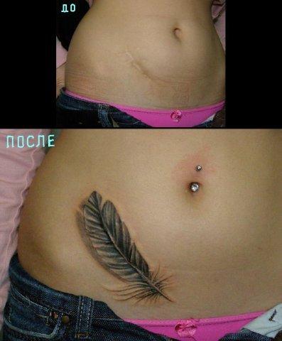 Татуировки на шрамах рубцах